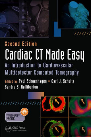 Cardiac Ct Made Easy: An Introduction To Cardiovascular Multidetector Computed Tomography, Second Edition (Volume 1)