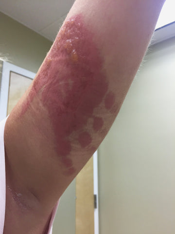 arm with area of contact dermatitis in the shape of a hand