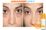 OrangeDaily Wrinkle Reduction Eye Complex (Vitamin C Skincare Product)