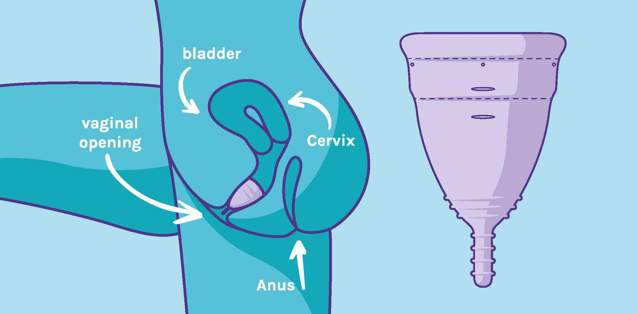 Can a Menstrual Cup spill over inside me and leak everywhere?