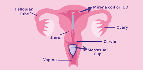 Can I use a menstrual cup if I have a Mirena coil or IUD fitted?