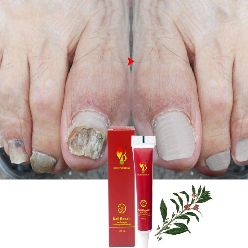 Best Fungus Nail Treatment Cream Onychomycosis Paronychia Anti Fungal Nail Infection Fights Bacteria And Fungus Naturally - EM