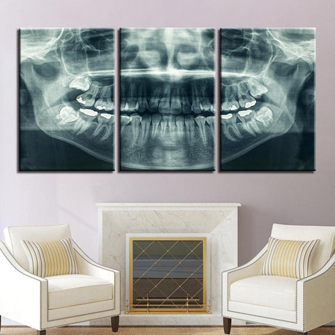 New Day Stock Store Canvas Paintings Medium / 3 Pieces / No Frame Dental X Ray Multi Piece Canvas Set
