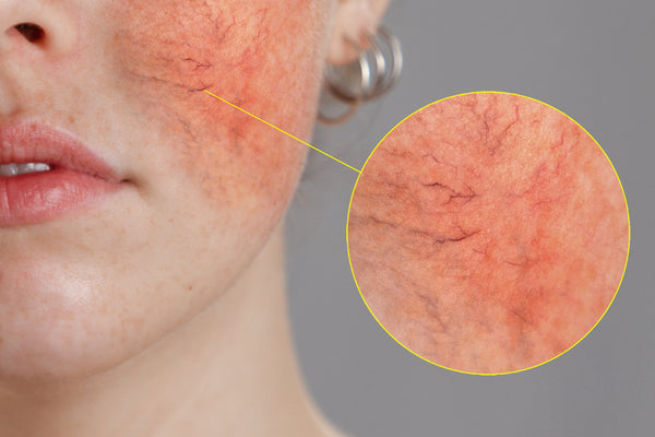 Triggerfaktorer for Rosacea