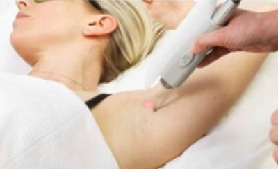 Things to consider before starting laser hair removal treatments