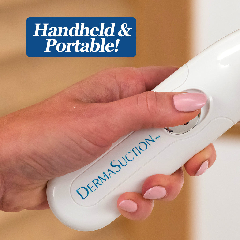 Dermasuction held by a hand