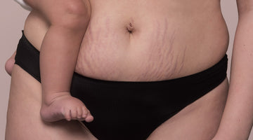 THE LOWDOWN ON PREGNANCY STRETCH MARKS