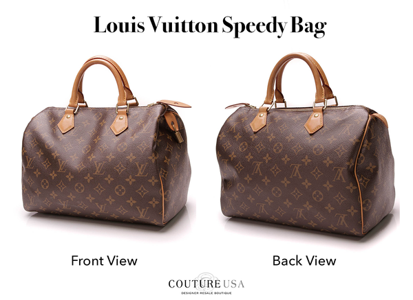 Louis Vuitton Speedy Bag View