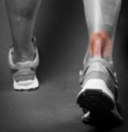 a76e0fce12d HOW TO MINIMIZE SCARRING AFTER YOUR ACHILLES TENDON REPAIR SURGERY -  Scarless Canada