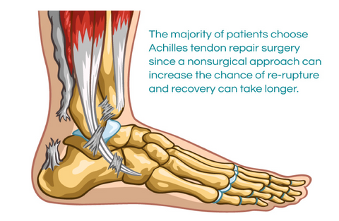 578f2a4682f Even though patients often choose to undergo Achilles tendon repair surgery