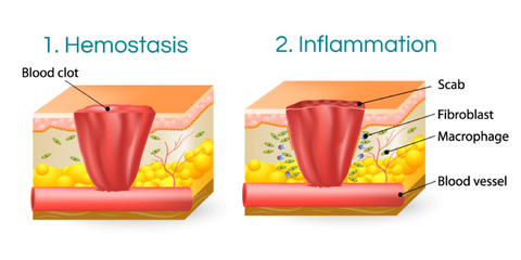 HOW WOUND HEALING WORKS - Scarless Canada