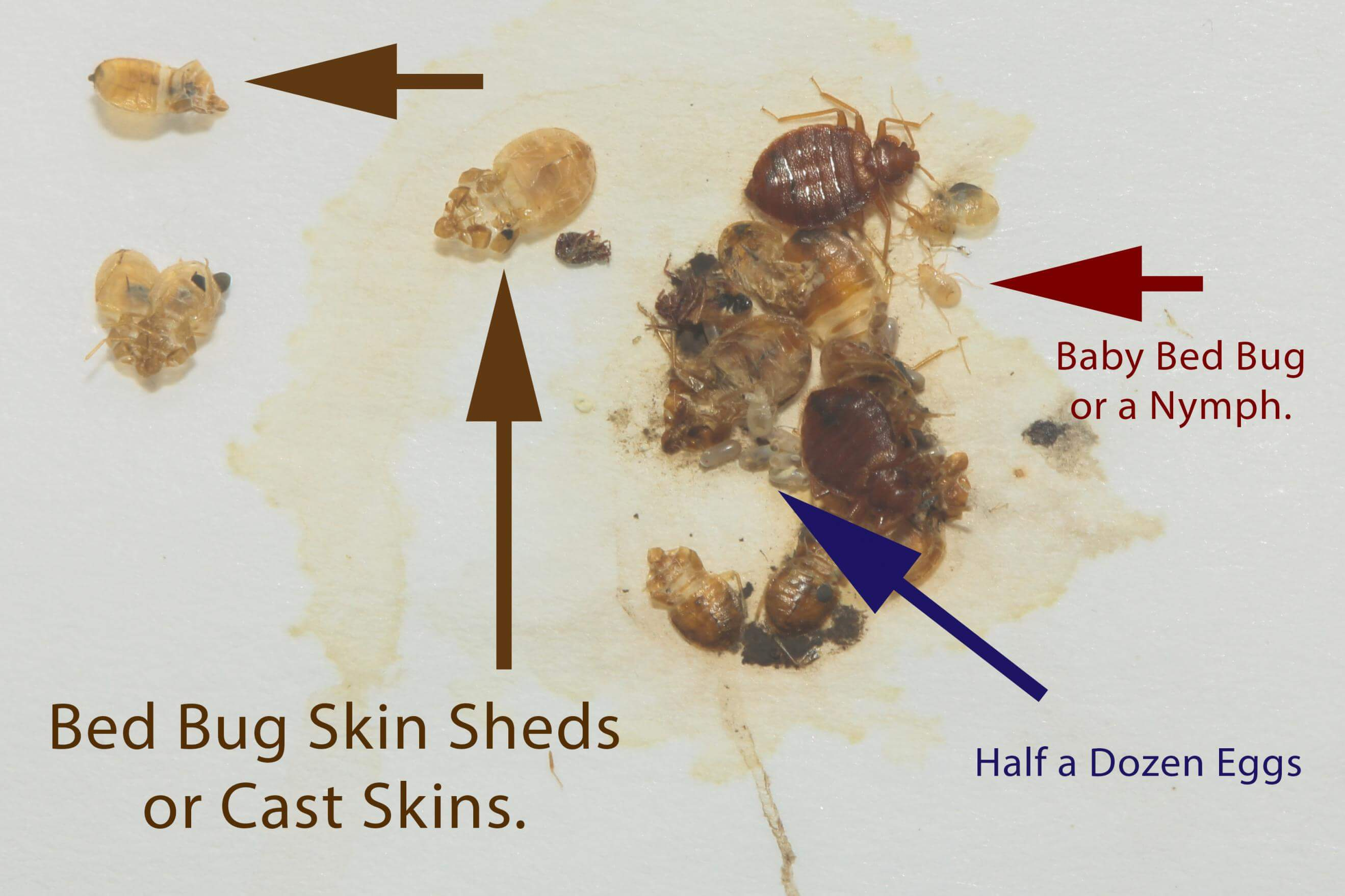 Bed Bug Skin Byebyebedbugs