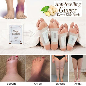 Anti-Swelling Ginger Root Detox Foot Pads