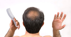 Baldness, Early Gray Hair May Be Indicator of Heart Disease
