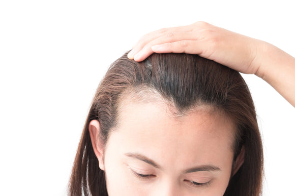 Hair Loss on Temples: Can It Be Prevented or Treated?