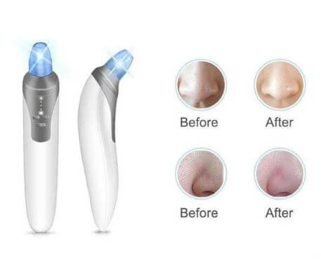 Get Rid Of Acne Using Comedo Suction Tool