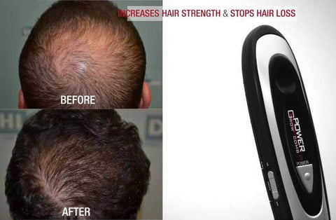 Hair Growth Treatment Solution
