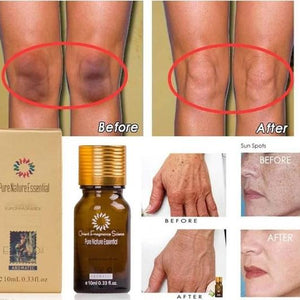 Essential Oils For Dark Spots