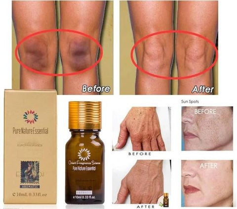 What Essential Oil Breaks Down Scar Tissue