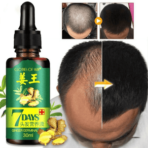 TMC Ginger Hair Growth Serum Reviews