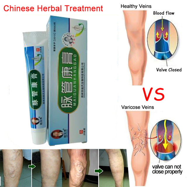 Varicose Veins ointment eins Varicose Treatment Plaster Varicose Veins Cure Patch Vasculitis Natural Solution Herbal Patches