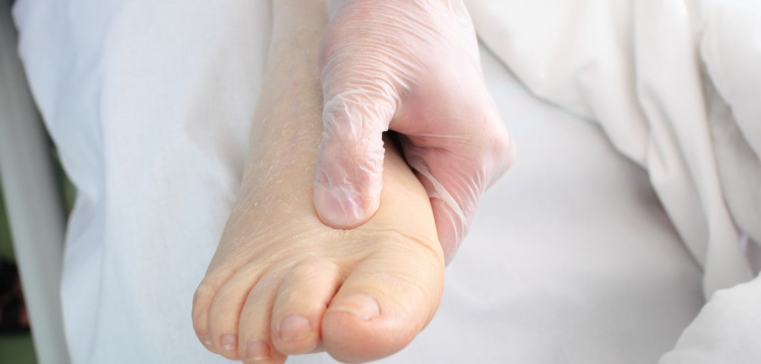 Common Foot Problems and How to Prevent Them