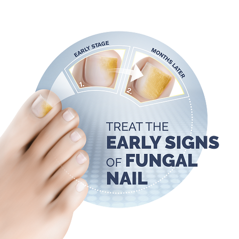 How to Treat Fungal Nail