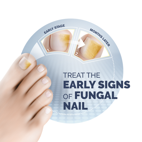 Fungal Nail Infections: What you need to know