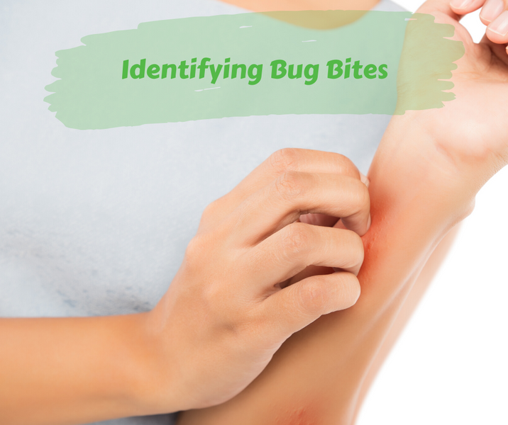 Identifying Bug Bites
