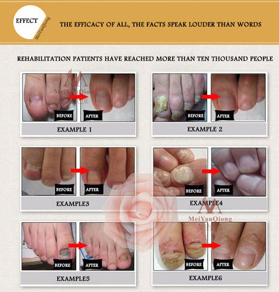 Essence Fungal Nail Treatment