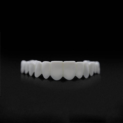 Image of Snap on Veneers