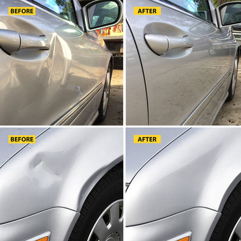 Image of Car Dent Remover