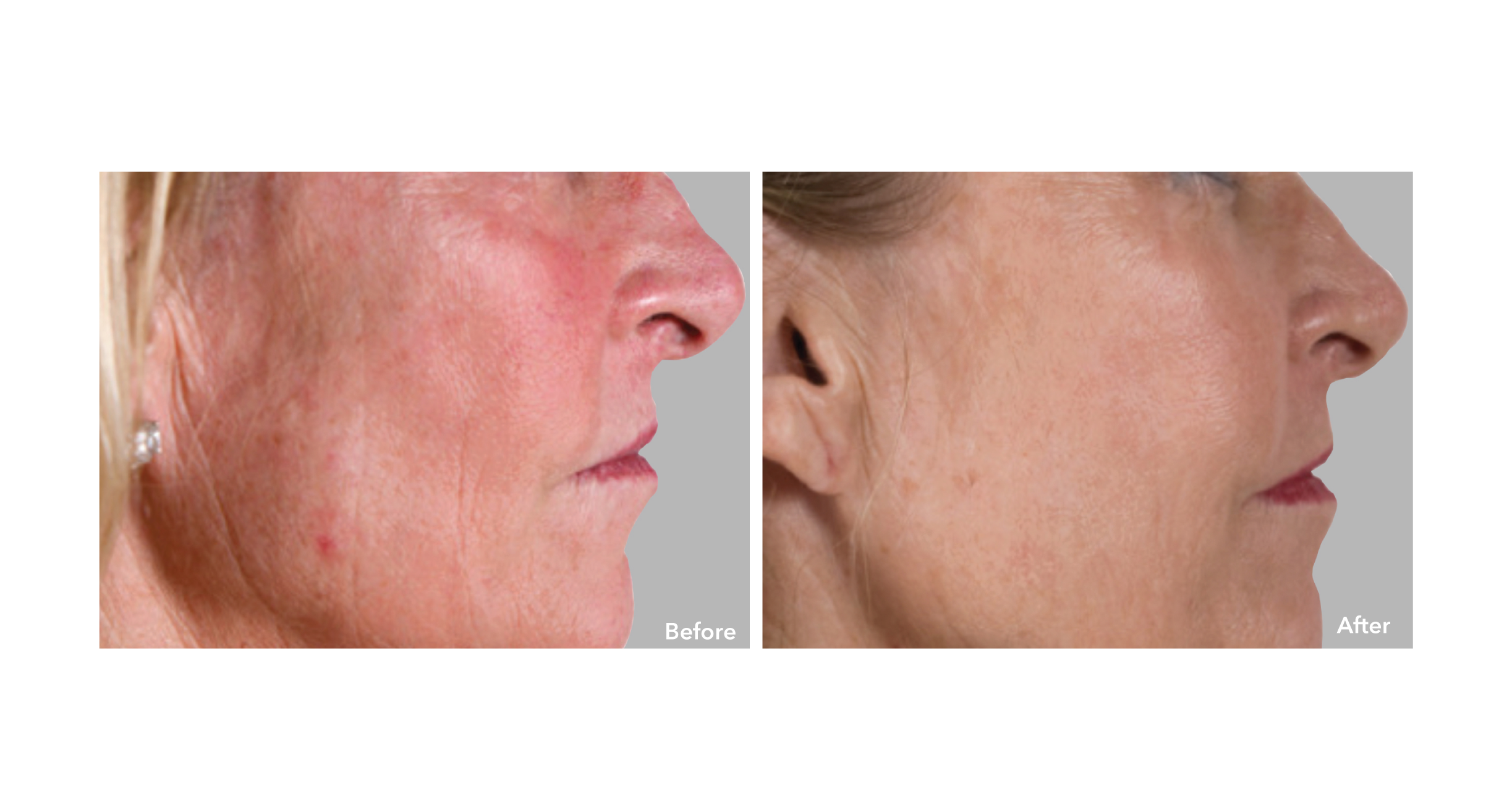 The AnteAGE MD Home Skin Care System (a medical grade skin care product) is a perfect to help all skin types be healthier and appear younger.