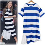 Striped Irregular Loose Knee-length Dress
