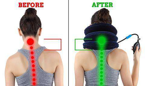 neck pain relief  FAST NECK PAIN RELIEF - Cervical Neck Traction Device – Eagle Kart