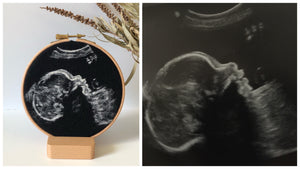 Ultrasound Art Keepsake - Full Payment