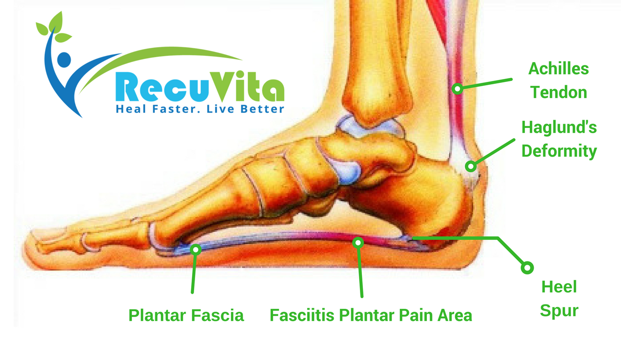Heel Spur & Plantar Fasciitis: What is it, and how to treat it -2018 review-