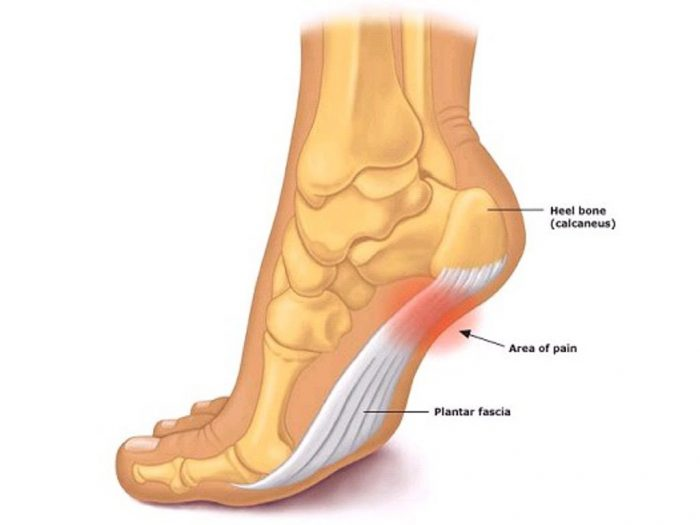 Top 5 Best Shoe Inserts For Plantar Fasciitis