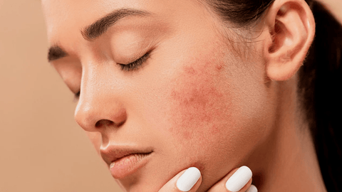 How to treat PCOS acne