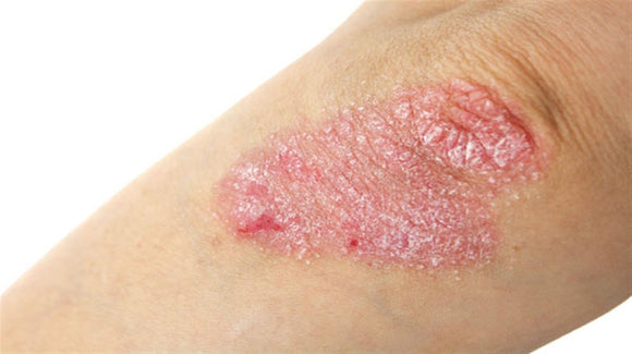 Psoriasis – 8 things you need to know