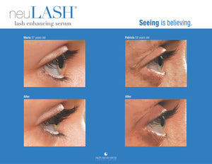 NeuLASH Lash Enhancer