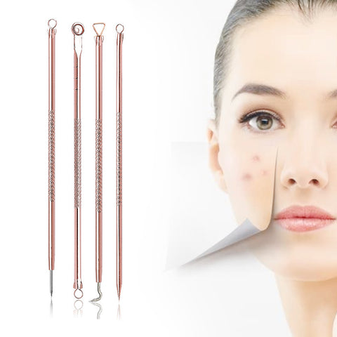 Y.F.M® 4pcs Acne Blackhead Remover Needles Set, Rose Gold Cleansing Tool - MooBooExpress