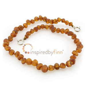 Inspired By Finn Baltic Amber Anklet