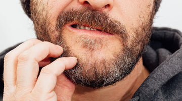 How to deal with dry skin under your beard