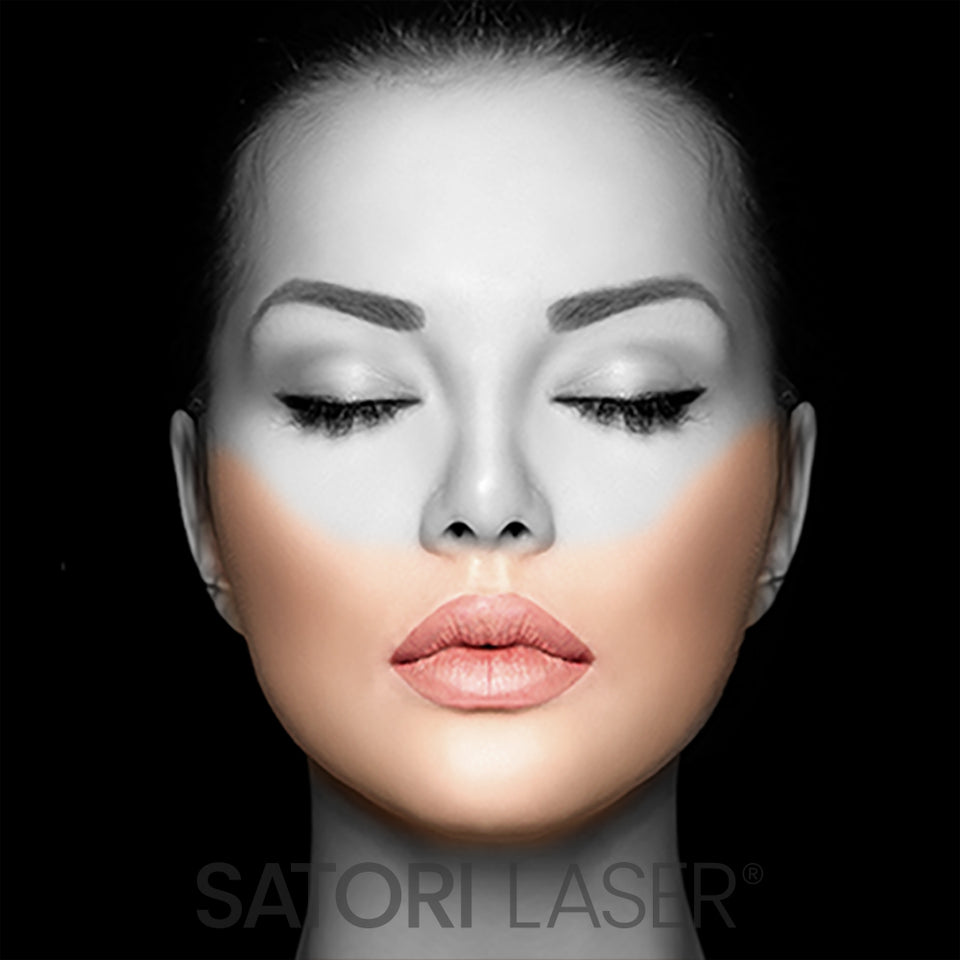 Face Lower (F) - Satori Laser