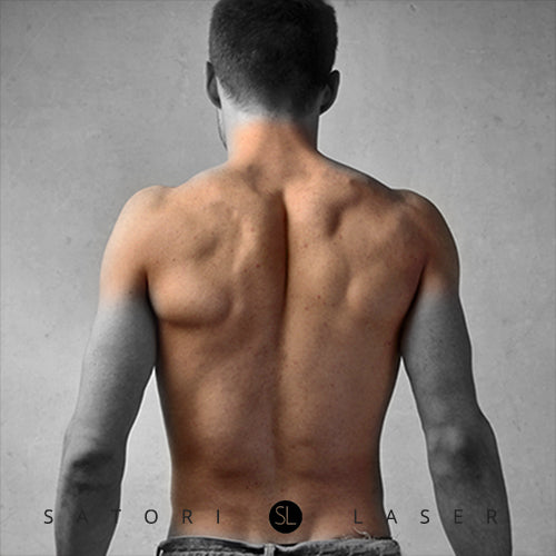 Full Back+Back Neck+Shoulder (M) - Satori Laser