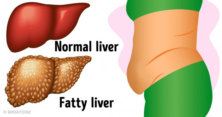16 warning signs your liver is overloaded with toxins that are making you fat