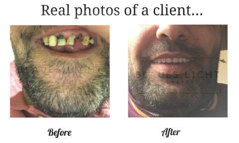 the perfect smile veneer