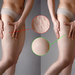 red light for cellulite