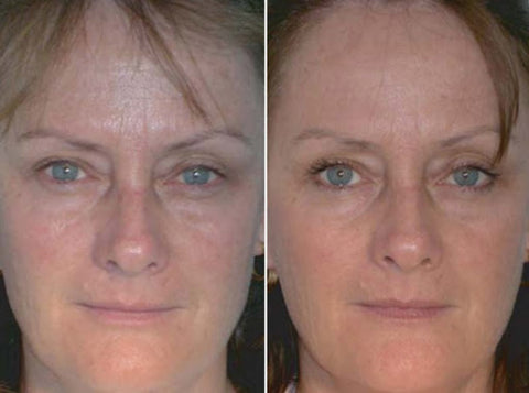 Red Light Therapy for Wrinkles: Before and After Comparison
